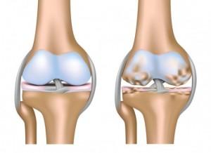 Joelho saudável - joelho com artrose