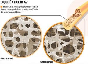 osteoporose-osso-ortopedia