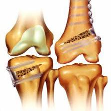 osteotomias_femur_tibia