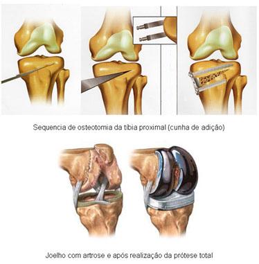 artrose_joelho_osteotomia_tibia_adriano_leonardi