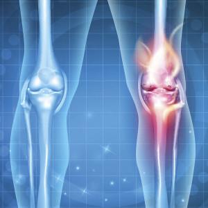 artrosenojoelho